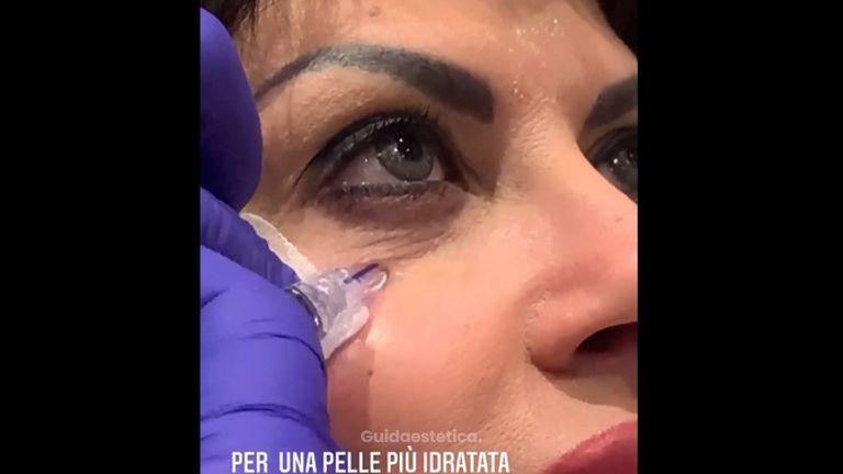 Ringiovanimento - Dott. Bellone Donato