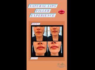 Filler labbra - Dottoressa Serafina Ghianda