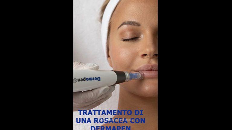 Trattamento di una rosacea con dermapen - Dott.ssa Claudia Calabrese