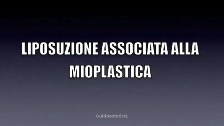 DR. MASSIMO RE - LIPOSUZIONE ASSOCIATA ALLA MIOPLASTICA (aumento dei polpacci con protesi)