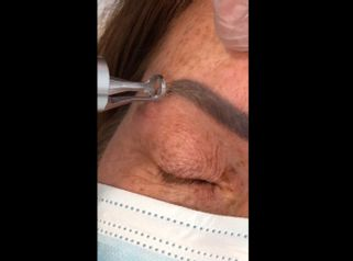 Rimozione tatuaggi - Dott. Virgilio Medical Laser