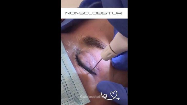 Plexer - Blefaroplastica non chirurgica - Nonsolobisturi