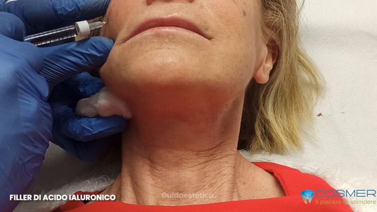 Filler acido ialuronico zigomi - Poliambulatorio Cosmer Torino