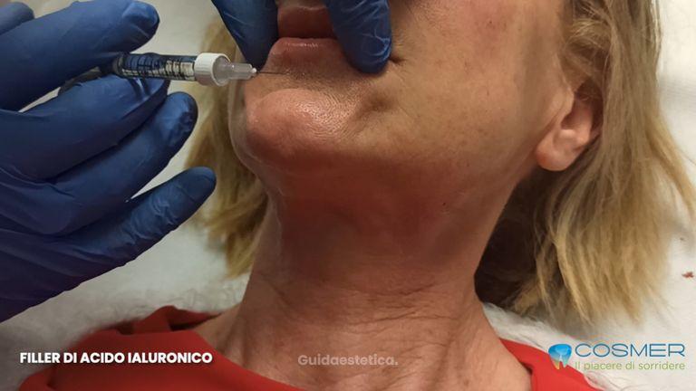 Filler acido ialuronico labbra - Poliambulatorio Cosmer Torino