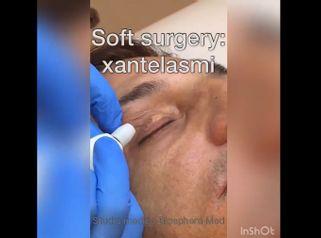 Xantelasmi - Studio medico BiospheraMed