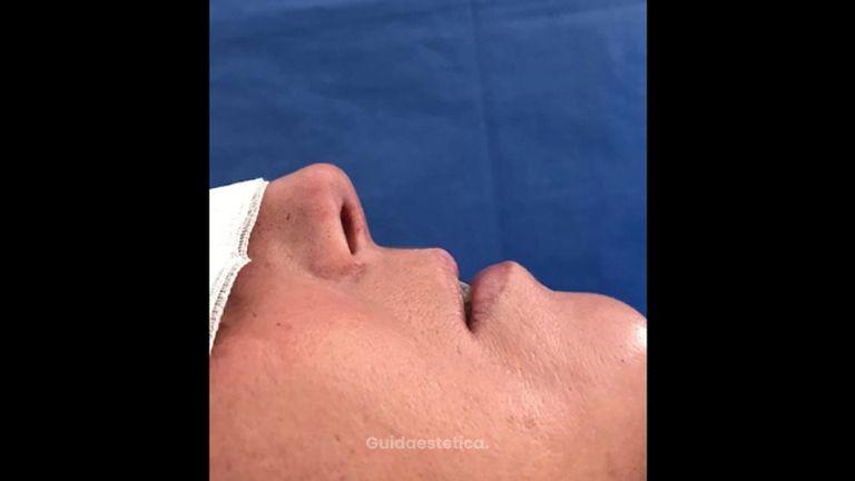 Filler labbra - Dott. Edoardo Garassino