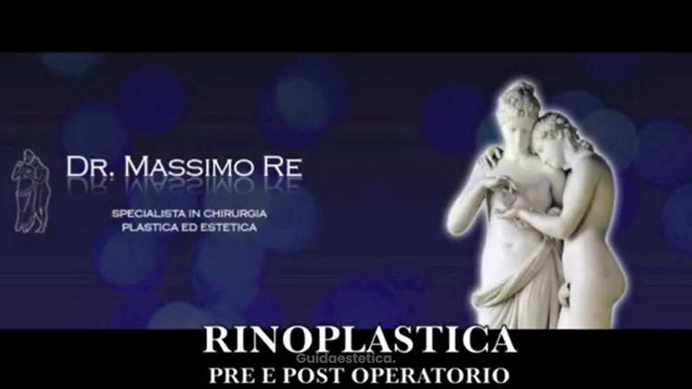 Rinoplastica prima e dopo l'intervento - Dr. Massimo Re