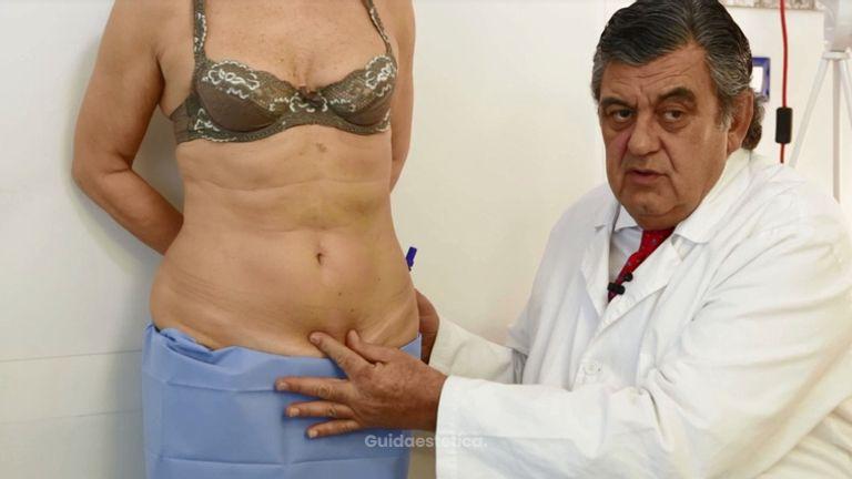 Addominoplastica risultati e postoperatorio