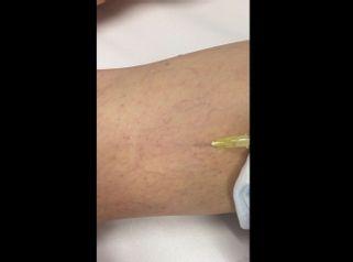 Scleroterapia con Atoxisclerol dottoressa Luciana Trova