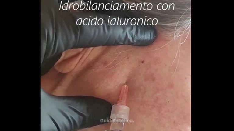 Idrobilanciamento con acido ialuronico - Dott.ssa Carla Enrica Marino