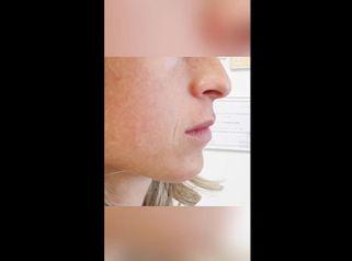 Filler labbra - Dott.ssa Daniela Cosma