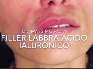 Dott. Rota: Acido Iualuronico