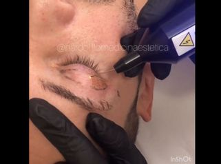 Blefaroplastica non chirurgica - Dott.ssa Paola Nardolillo