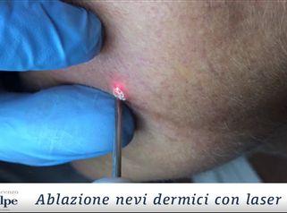 Ablazione Nevi Dermici Con Laser Co2