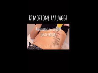 Rimozione tatuaggi - Studio medico BiospheraMed